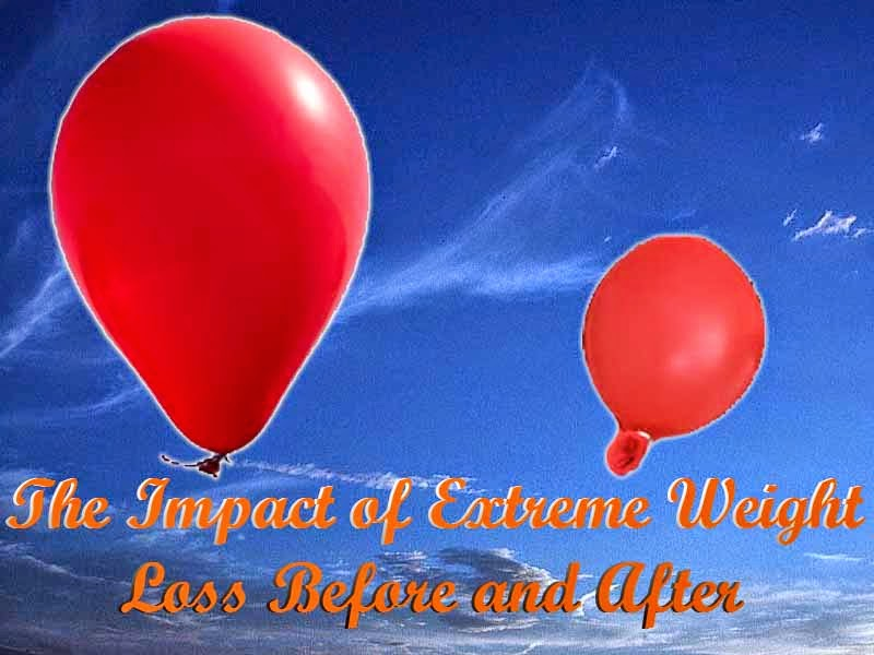 Impact of Extreme Weight Loss