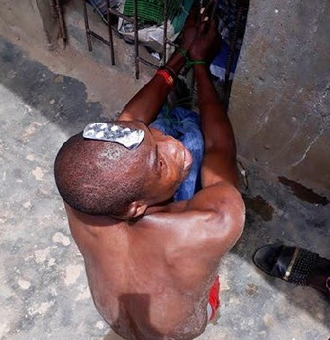 man runs mad taking tramadol lagos