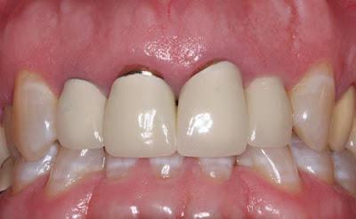 những điều nên biết về trồng răng sứ titan -8