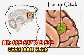 Tips Mengobati Tumor Otak Tanpa Operasi