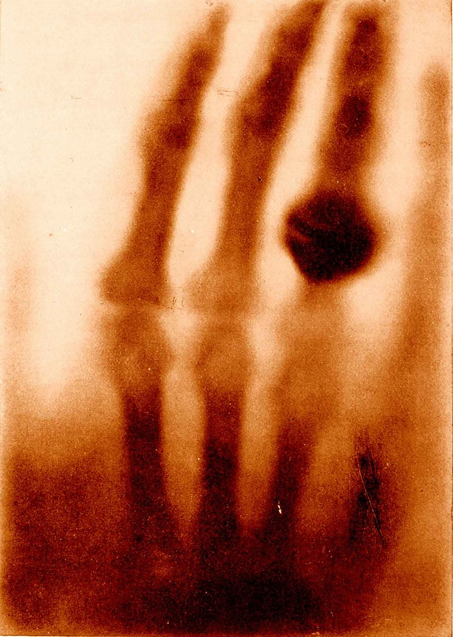 #24 The Hand Of Mrs. Wilhelm Röntgen, Wilhelm Conrad Röntgen, 1895 - Top 100 Of The Most Influential Photos Of All Time