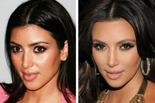 shilakejawani420: Kim Kardashian Before and After Surgery