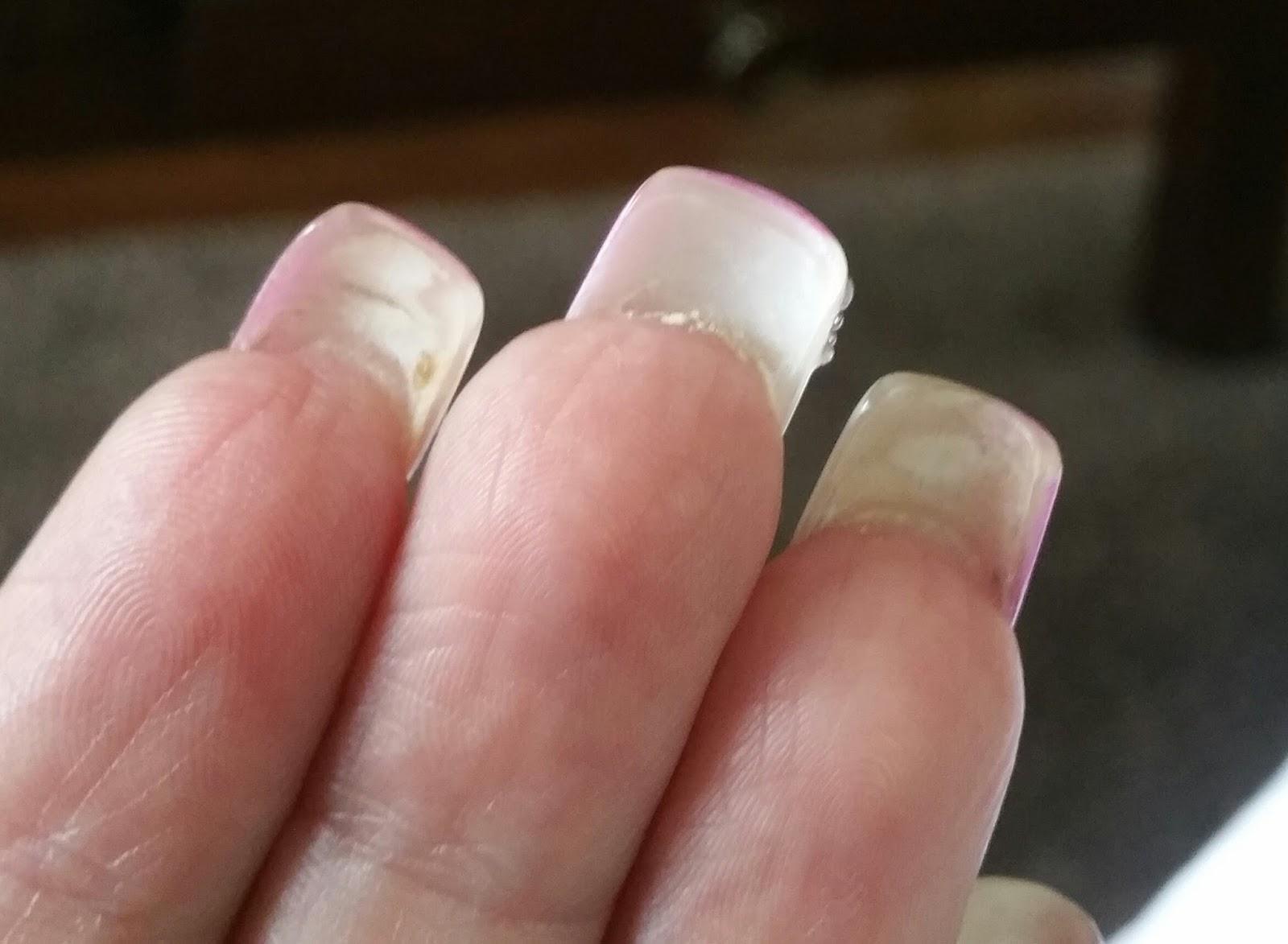 naglar som flisar sig