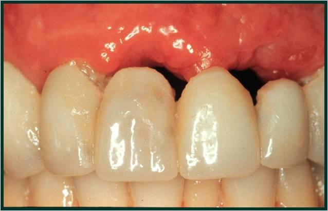 Dr Dooley S Dental Blog Dental Implants Preserve Bone
