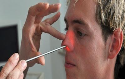 Penyebab, Ciri-Ciri, dan Cara Mengobati Polip Hidung