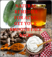 Natural remedies for acne, 360life blog, smooth face
