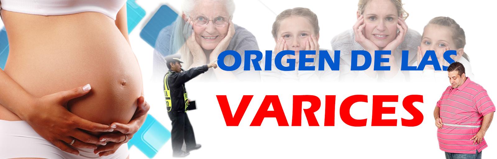 La clasificación varikozno de las venas extendidas