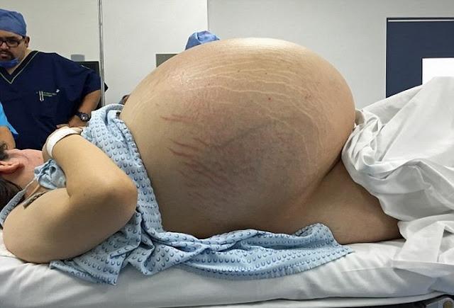 Из-за огромного живота 24-летняя девушка казалась беременной. Правда оказалась намного страшнее…