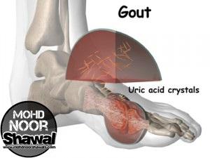 6 Makanan yang Baik Untuk Penghidap Sakit Gout
