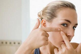 yaitu sejenis benjolan kecil yang biasanya tumbuh dan ada di wajah BLOG PAGE ONE GOOGLE | Rekomendasi Herbal Untuk Jerawat Bandel