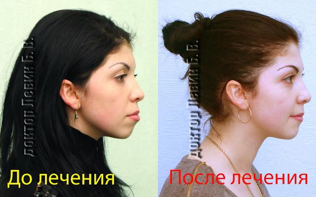 Профиль пациента до и после лечения. Лечение проводили брекетами с удалением премоляров.