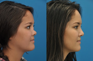 nasal deformity correction