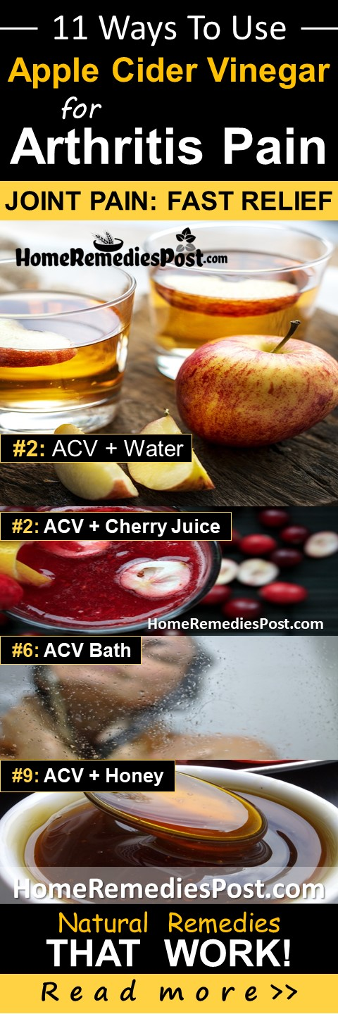 Apple Cider Vinegar For Arthritis, Joint Pain Relief, Arthritis Pain Relief Fast, How To Get Rid Of Arthritis, Home Remedies For Arthritis, Arthritis Treatment, How To Reduce Arthritis Pain, Rheumatoid Arthritis, Cure Arthritis,