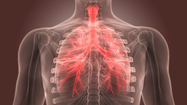 What Is Bronchitis?