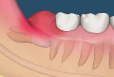 Nhổ răng số 8 mọc lệch nguy hiểm không?