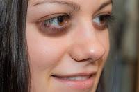 Göz Altı Morlukları İçin Bal Maskesi
