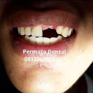 gambar foto gigi ompong depan kanan kiri pasang gigi palsu
