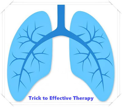Mesothelioma Cancer: Very early Acknowledgment of Symptoms is Trick to Effective Therapy