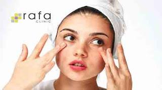 Lowongan kerja Akunting Rafa Skin Care bandung