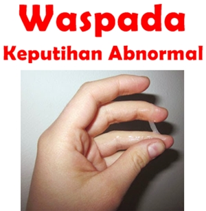 Obat herbal keputihan abnormal