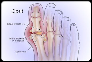 Remedies For Gout Review: Remedies For Gout
