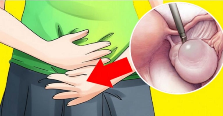 ovarian cyst ignore symptoms