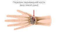 Оперативное лечение перелома ладьевидной кости кисти в Харькове