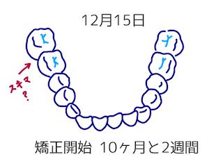 ©さんがつの歯科矯正を始めます 歯科矯正のイラスト
