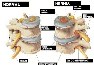 """""""Hernia lumbar, disco herniado"""""""