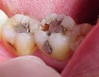 Cara Merawat Gigi Agar Putih - Terbaru Sekarang 1003c568ce