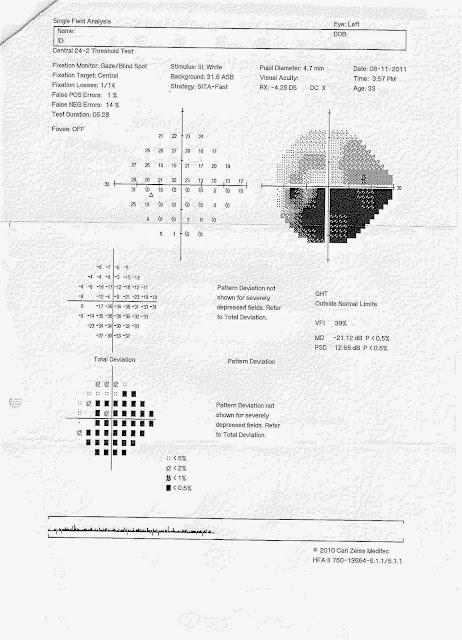 中醫眼科 Blog: 青光眼(Glaucoma)(2)-中醫眼科診斷