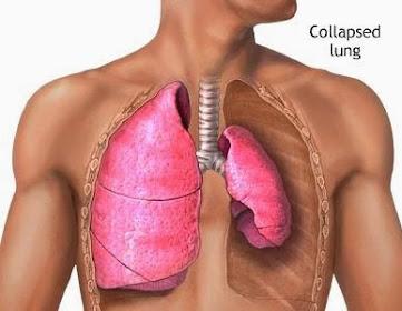Collapsed Lung, Pneumothorax