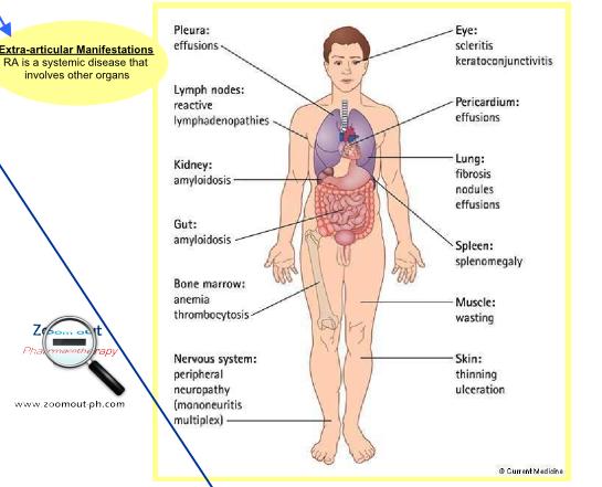 Rheumatoid arthritis extra-articular manifestations