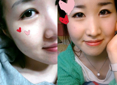 짱이뻐! - Satisfied With The Result Of Eyelid Surgery Korea