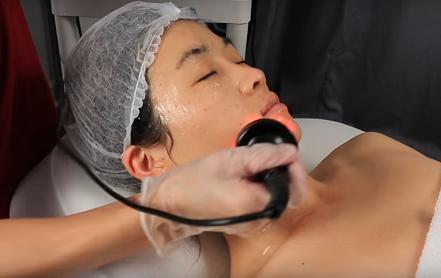 Melaukan perawatan wajah dengan RF