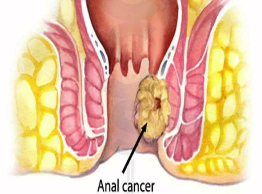 symptoms Anal cancer