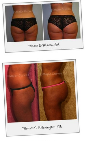 Butt Enhancement Results of Major Curves Cream