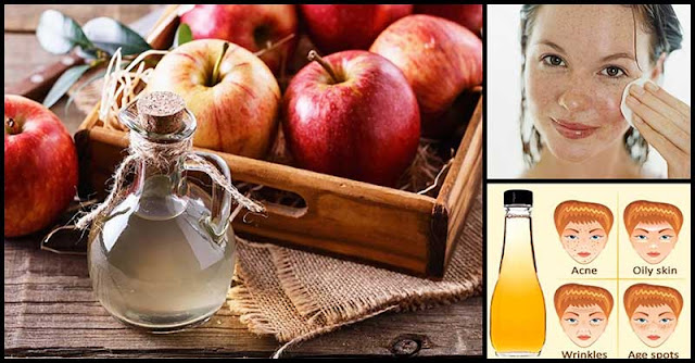 How To Use Apple Cider Vinegar To Help Achieve A Beautiful Skin