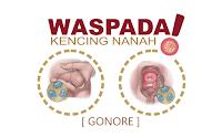 Bahaya Penyakit Kencing Nanah (Gonore) Jika Tidak Diobati