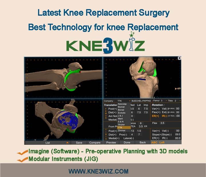 Kne3wiz is best of Knee Replacement  Surgery for Hip Joint