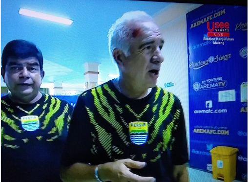 Dahi Pelatih Persib Bandung Mario Gomez tampak berdarah