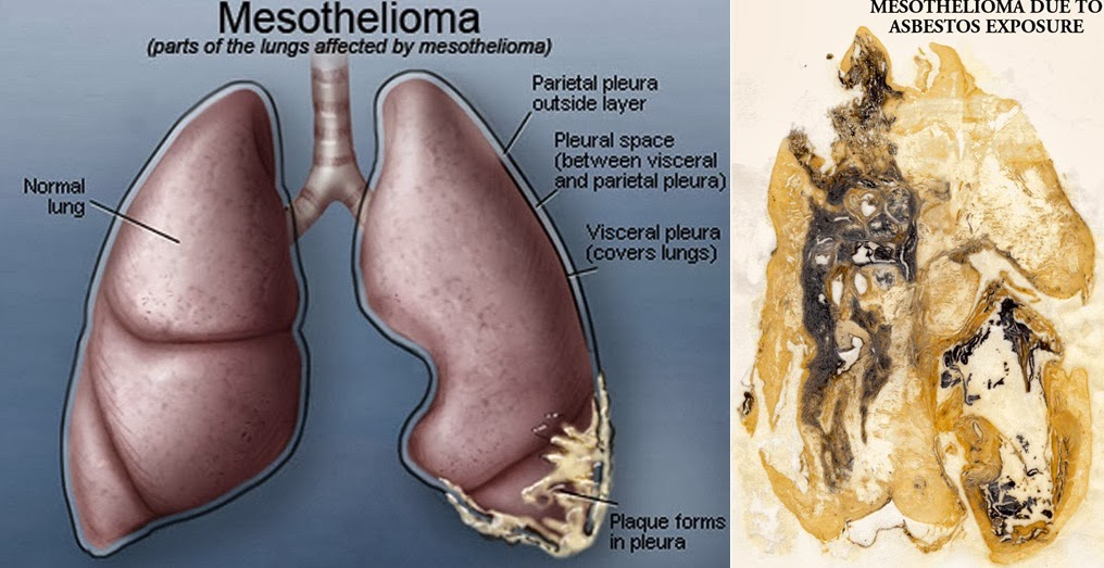 Mesothelioma Cancer  Types, Symptoms, Stages  Treatment of Mesothelioma Cancer  GbolaMedia