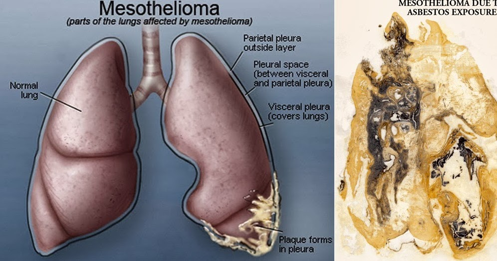 mesothelioma cancer types symptoms stages treatment of mesothelioma cancer gbolamedia. Black Bedroom Furniture Sets. Home Design Ideas