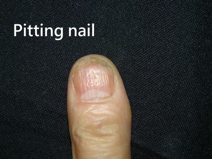 指甲乾癬-點狀凹陷(Pitting nail)