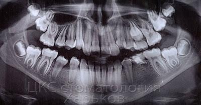 Панорамный снимок до расширения челюсти