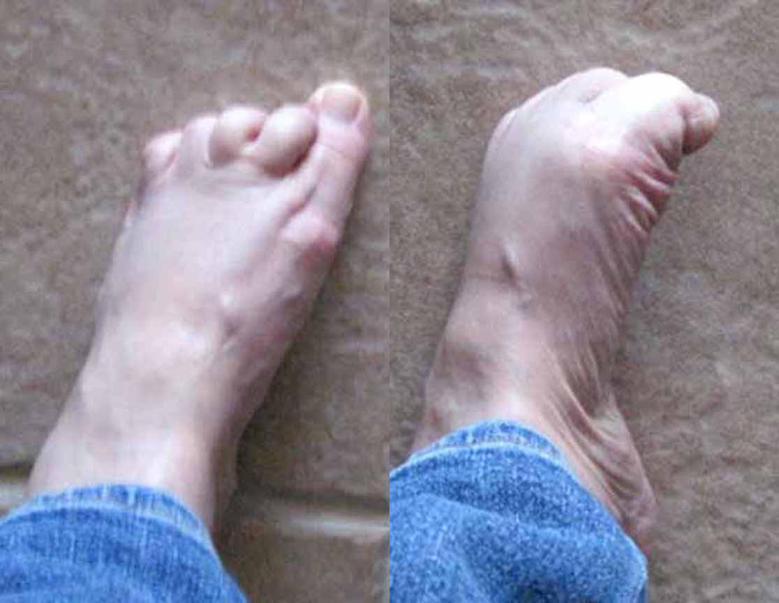 Foot Spasms 5