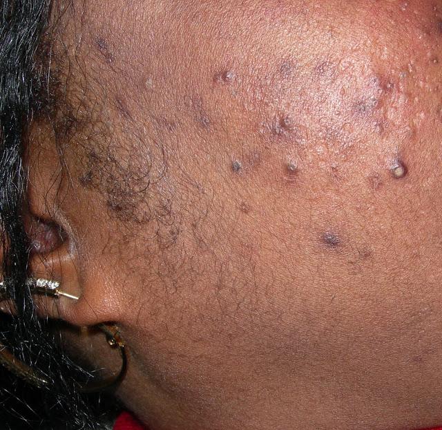 Bed-Bug-Bites-Pictures-Images-black-man-women