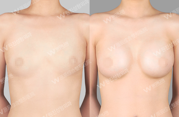 짱이뻐! - Before and After Photos Korean Breast Plastic Surgery