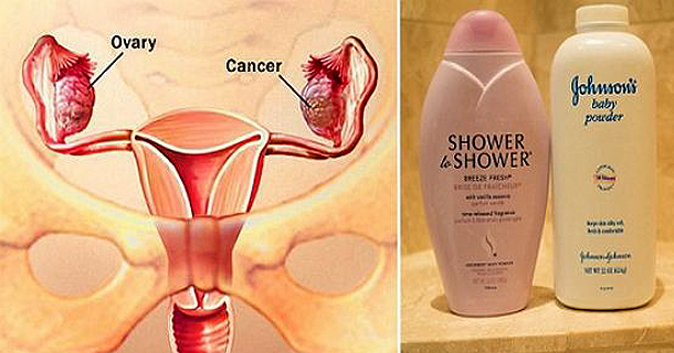 Important For All Ladies, This Famous Beauty Product Is Closely Linked With Ovarian Cancer