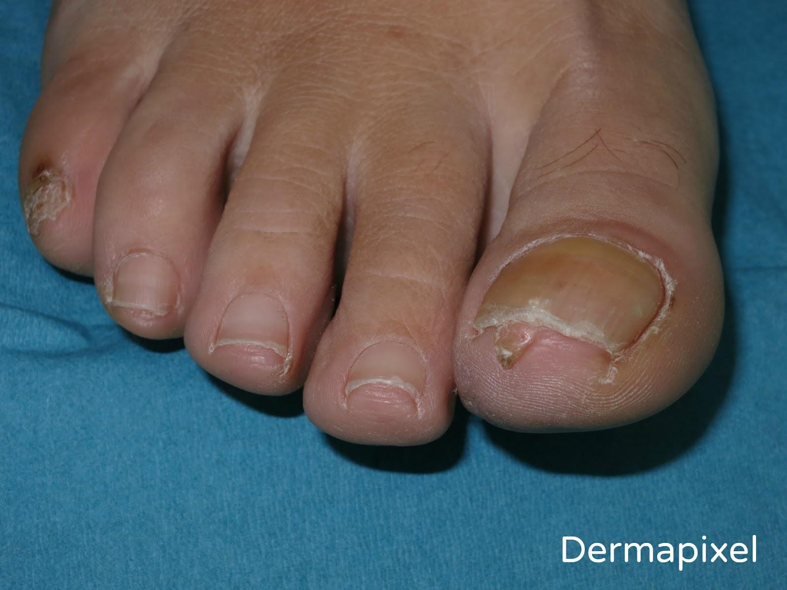 Dermapixel: Una verruga debajo de la uña